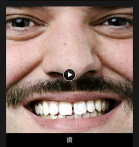 ビデオチュートリアル(歯⑲)